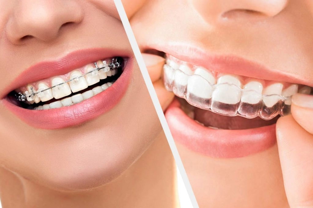 Clear Aligners- What to look for